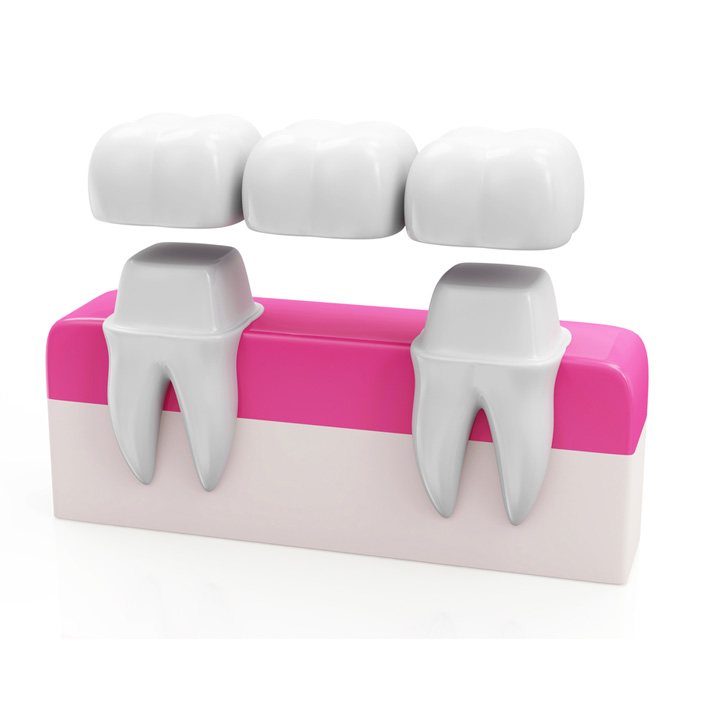 Bridges - Dental Services