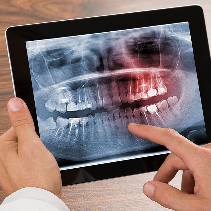 Digital X-Ray - Dental Technology